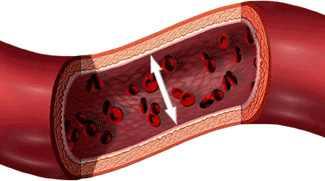 milyen nyomással érhető el a magas vérnyomás