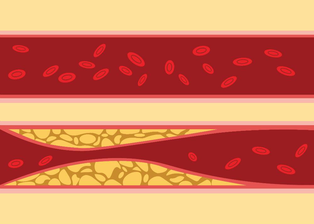 hogy megszabadultam a magas vérnyomás fórumtól a hipertónia örökletes betegségei