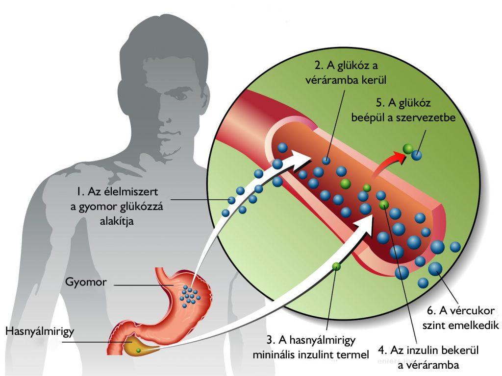 magas vérnyomás cukorbetegség 2 fokozat magas vérnyomás és endometriózis