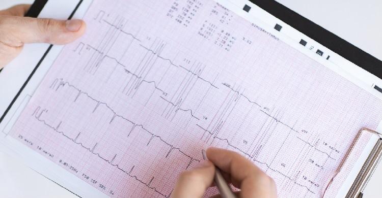 magas vérnyomás vizsgálati módszerek hipertónia szűrése