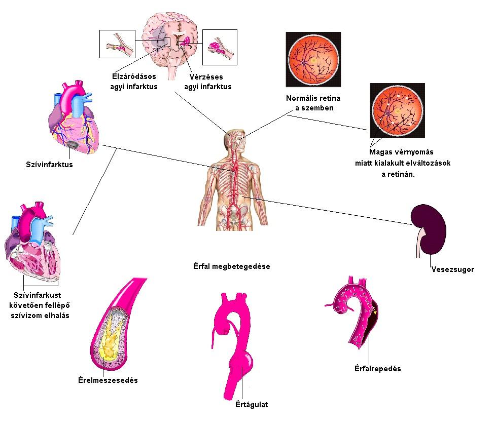 magas vérnyomású emberi állapot hipertónia blokádja