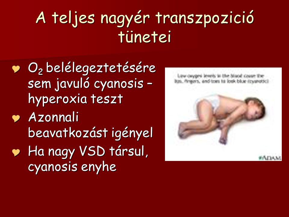 mi a komplex hipertónia