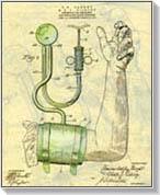 magas vérnyomás elleni hidroterápiám
