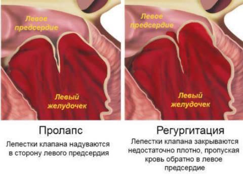 pontokat hidzsma hipertóniával 3 fokozatú magas vérnyomás esetén adj egy csoportot