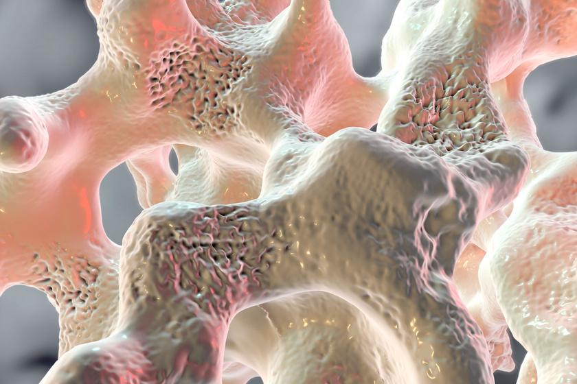 hidroterápiám magas vérnyomás ellen magas vérnyomás 2 fokos fizikai aktivitás