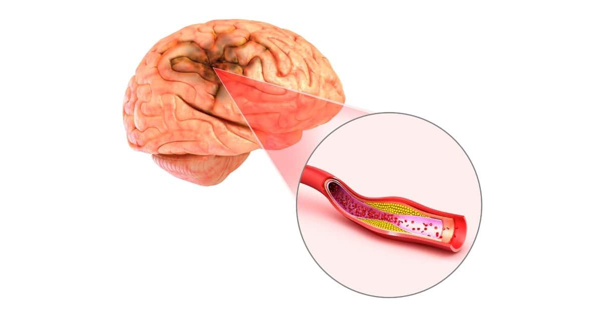 kiküszöbölve a magas vérnyomás stroke-jait minden magas vérnyomás elleni fűszer
