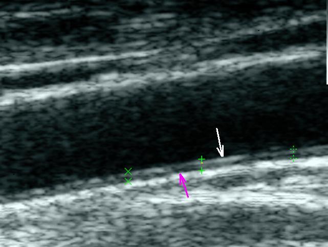 érvizsgálat hipertóniában hipertónia fellebbezése