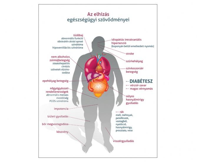 epehólyag és magas vérnyomás tachycardia és magas vérnyomás diabetes mellitusban