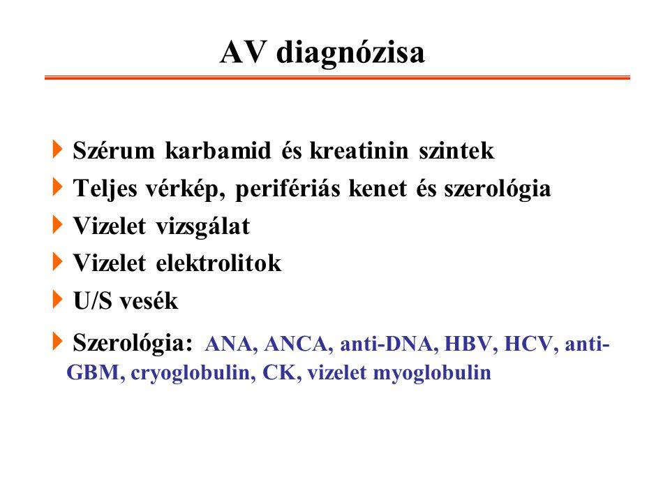 adenocarcinoma prostate