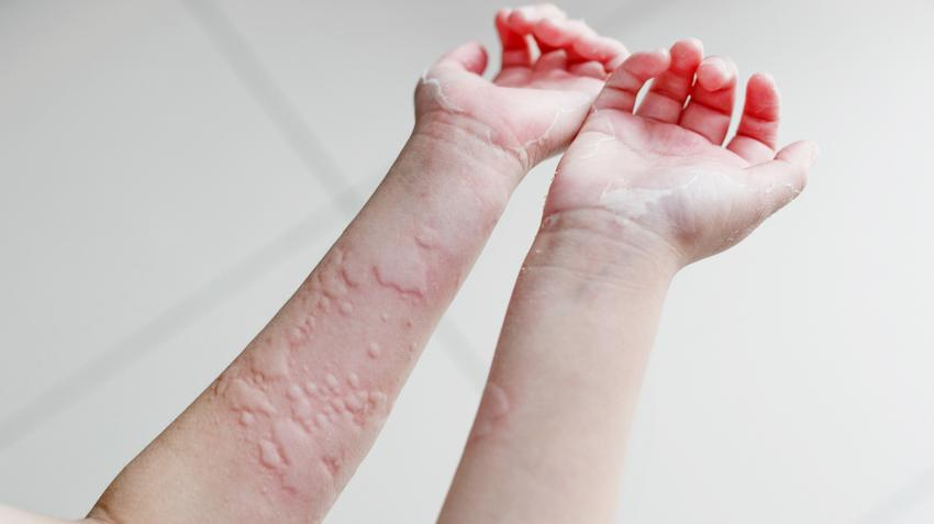 Övsömör oka, 12 tünete és 4 kezelési módja [teljes leírás] - 27 Sellő