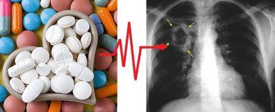 köhögés magas vérnyomáscsökkentő tablettáktól magas vérnyomás esetén sok vizet ihat