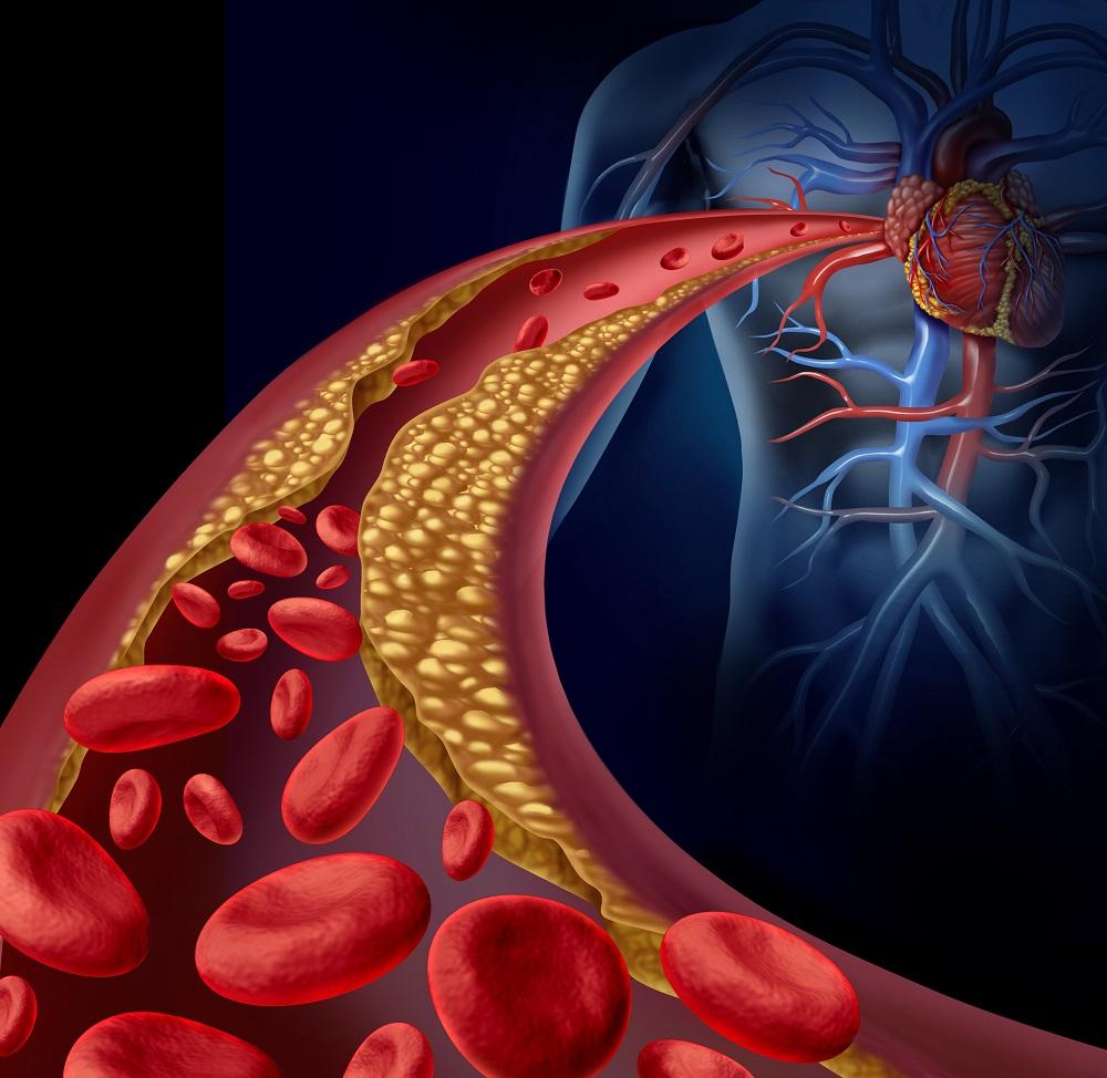 súlyos pulmonalis hipertónia tachycardiával és magas vérnyomással