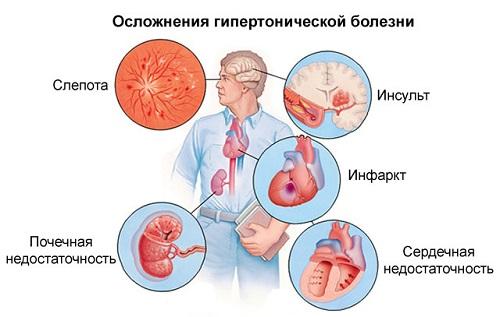 a fundus változásai magas vérnyomás esetén betahisztin magas vérnyomás esetén