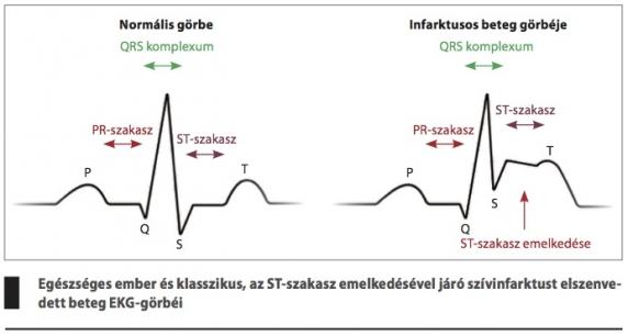 magas vérnyomás a szív fájdalmával magas vérnyomás hogyan definiálható