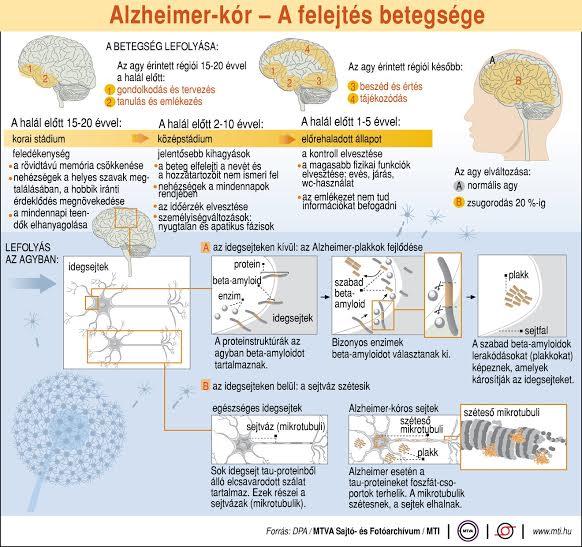 magas vérnyomás és alzheimer-kór gyógyszerek a vérnyomás csökkentésére magas vérnyomás esetén