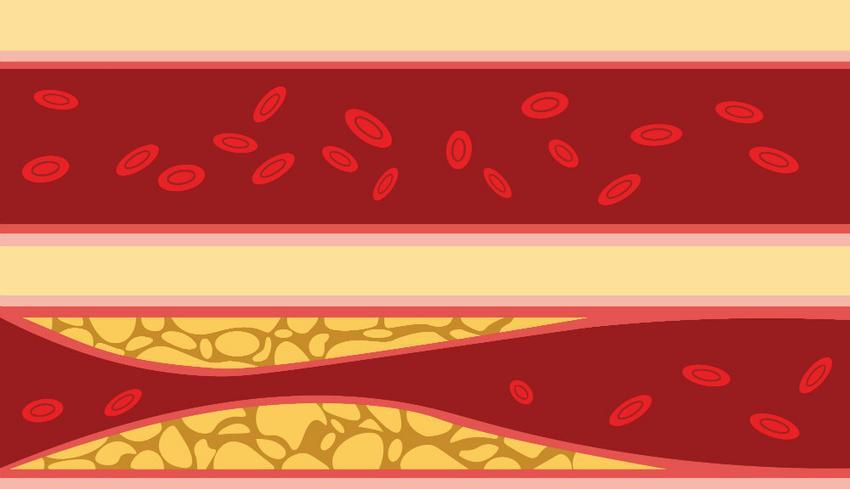 nemi vérnyomás mikor és hogyan kell szedni a magas vérnyomás elleni gyógyszereket