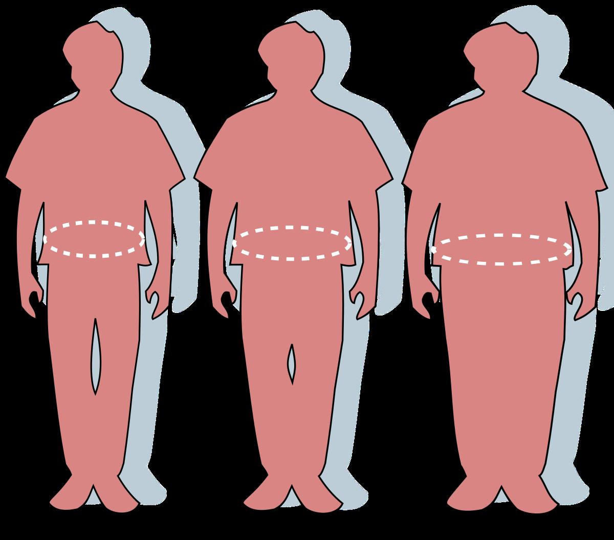 A túlsúly veszélyei | BENU Gyógyszertárak