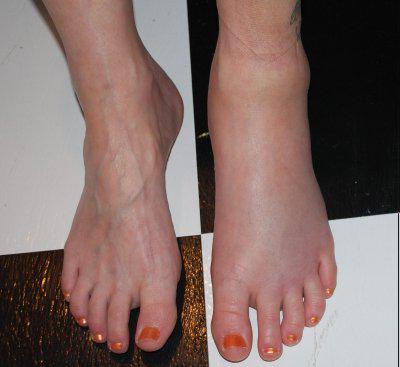 a lábak duzzadnak a magas vérnyomástól mit kell tenni diéta a magas vérnyomásért amit jobb enni